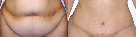 tummy tuck surgery orange county