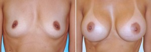 Orange County Breast Implants Before and after surgery