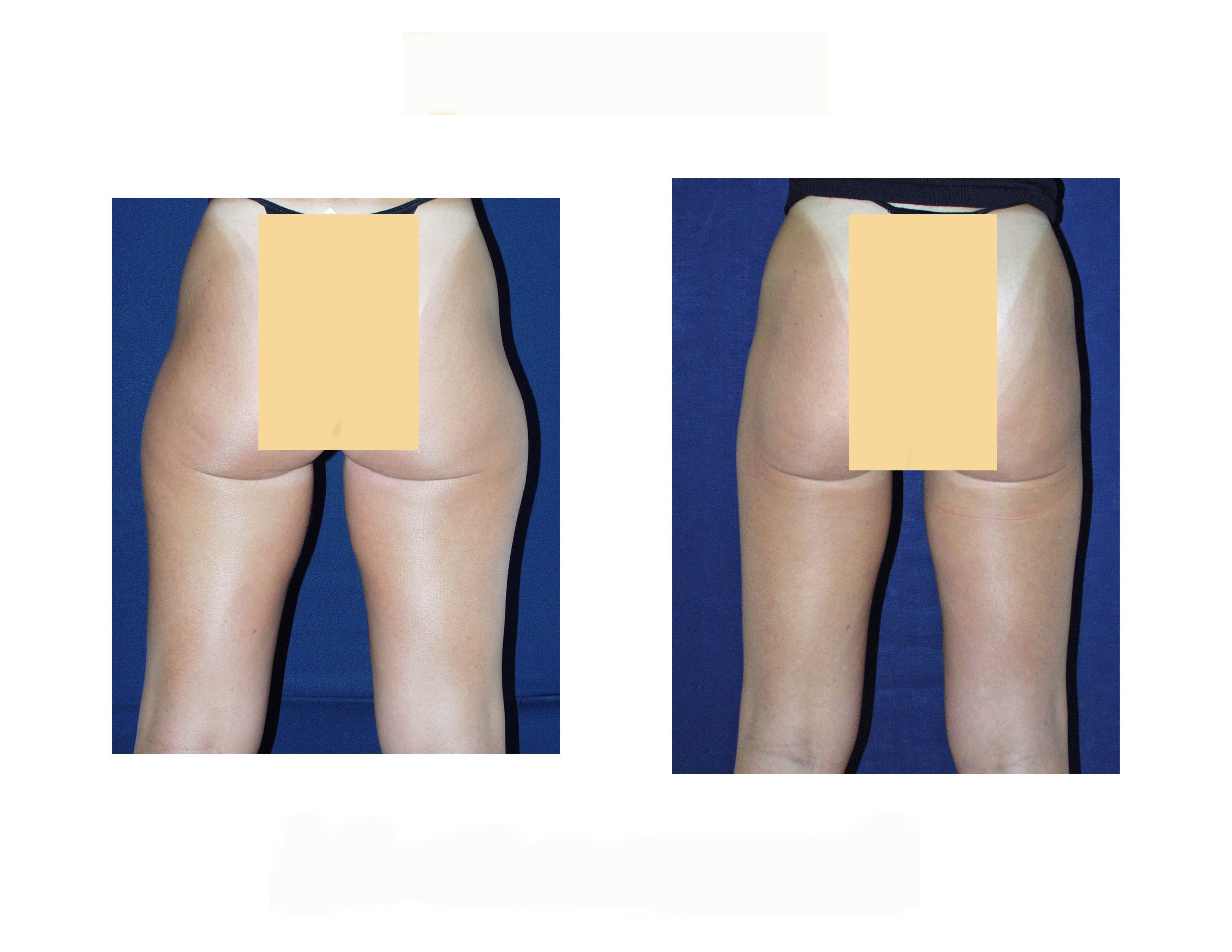 LIPOSUCTION INNER AND OUTER THIGHS