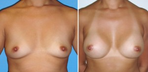NEWPORT BEACH BREAST AUGMENTATION