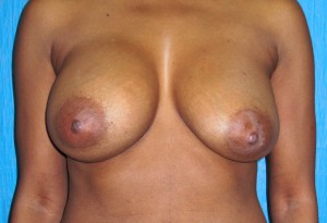 breast implant complications