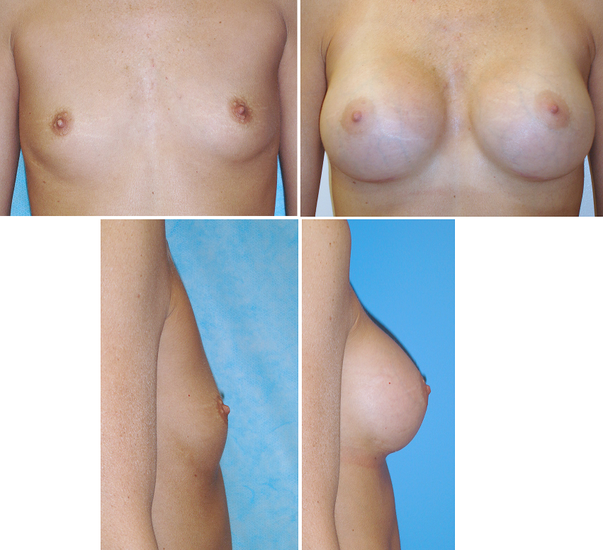 Breast Augmentation Before and After Pictures in Orange County