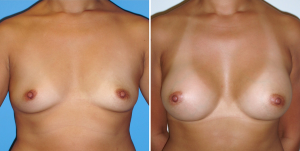 Breast Augmentation Before and After Pictures, Orange County