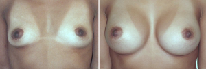 Breast Augmentation Surgery Before and After Pictures in Orange County