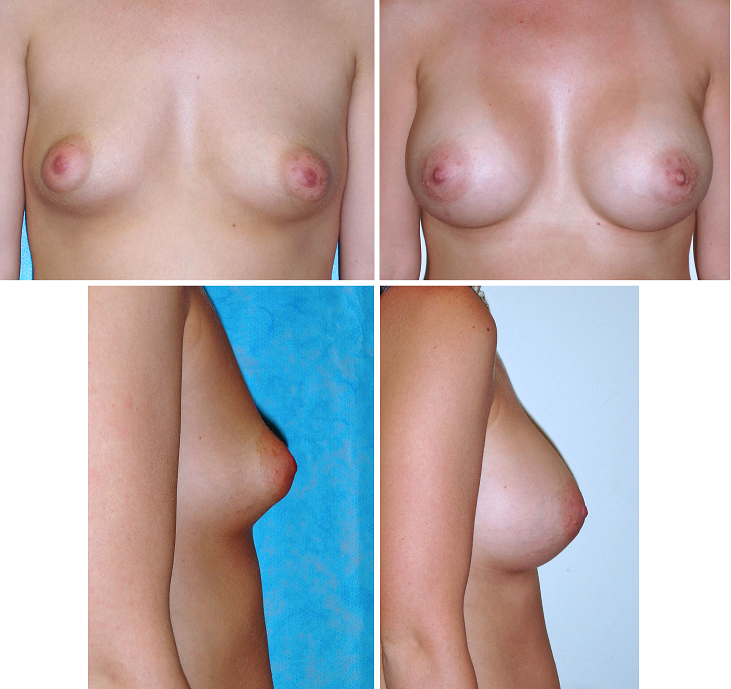Breast Augmentation Surgery Before and After Pictures