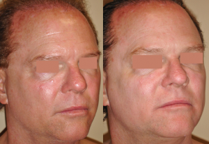 Facial skin rejuvenation with Mixto Laser