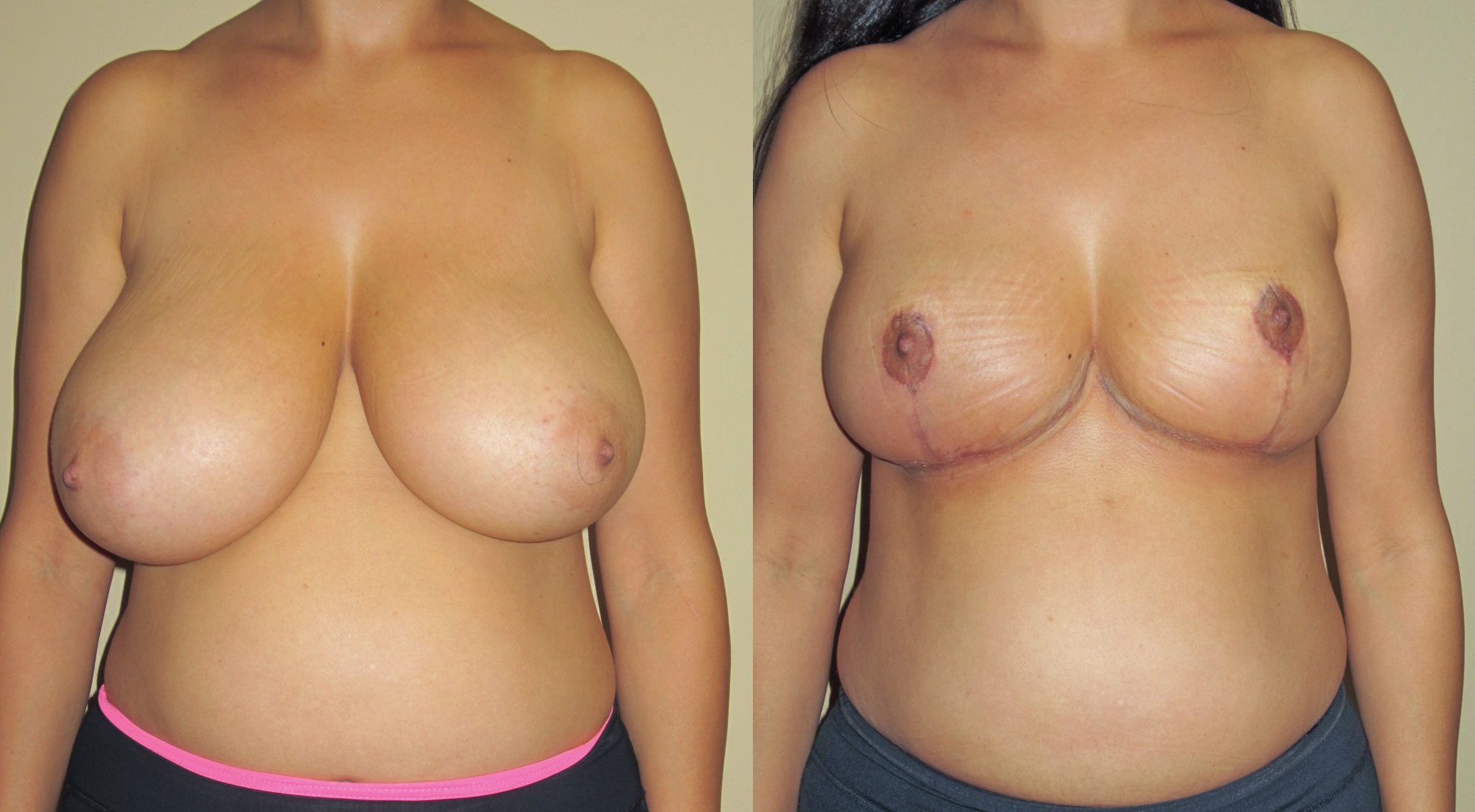 Can you be too old for breast implants