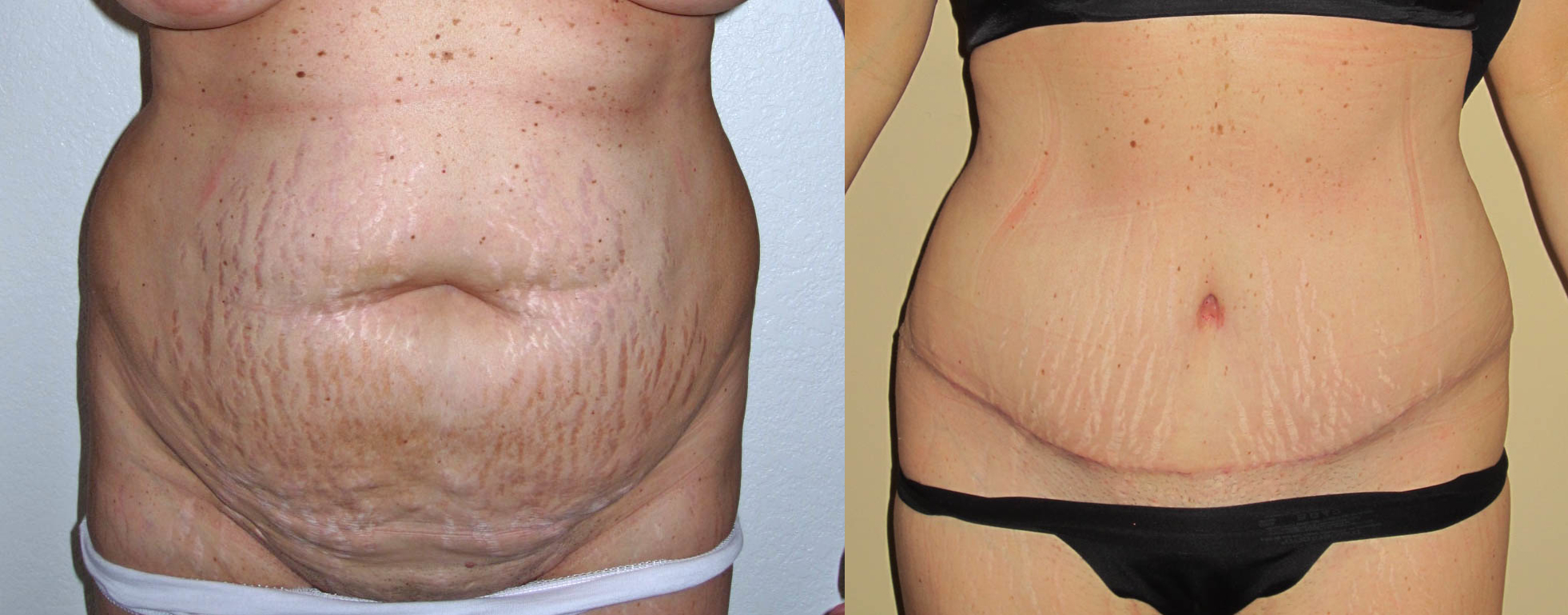 liposuction before and after tummy ggsxhYpTK