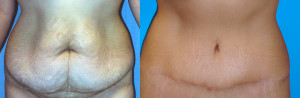 Tummy Tuck Surgery Before and After Pictures