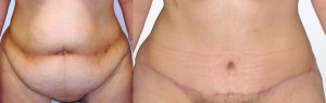 Tummy Tuck Surgery Procedure Before and After Pictures
