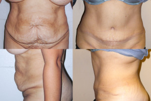 Tummy Tuck before and after picture