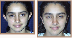 before-and-after-otoplasty