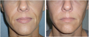 Before and After Injectable Filler