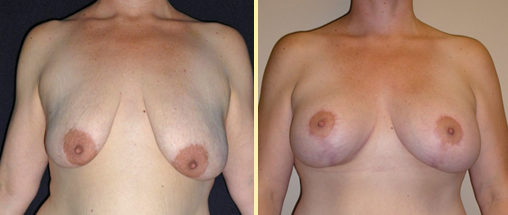 Breast Augmentation With Lift Before and After Photos