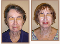 Facelift and Neck Lift Before and After Photos