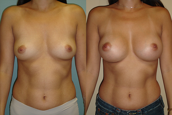 Breast Augmentation Before & After Photos Front