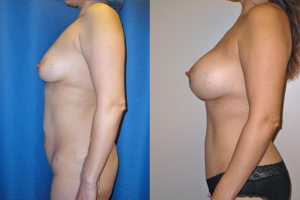 Breast AugmentationBefore & After Photos