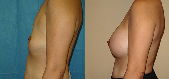 Breast Augmentation Before & After Photos Left