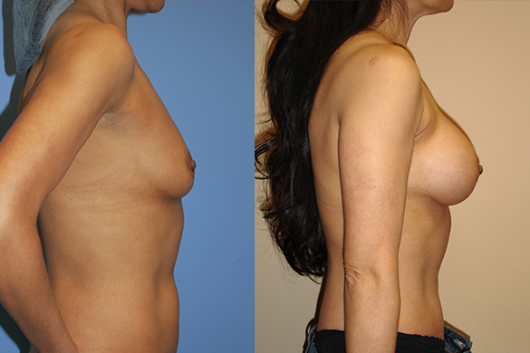 Breast Augmentation Before & After Photos Right