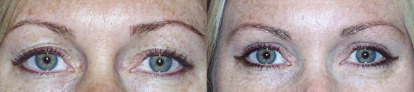 Eyelid Surgery Before & After Photos Front