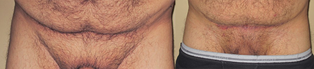 Pubic Lift Before & After Photos