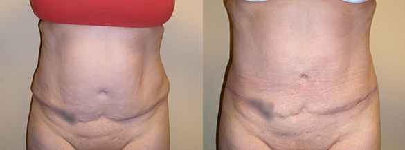 Abdomen Liposuction surgery Before & After Photos Front