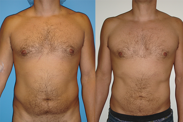 Abdomen Liposuction Before & After Photos Front