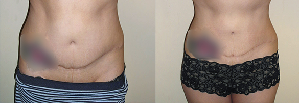 liposuction orange county Before & After Photos Front