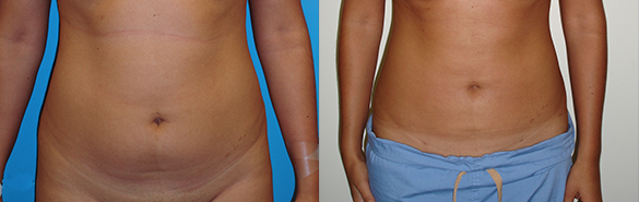 Liposuction Before & After Photos Front