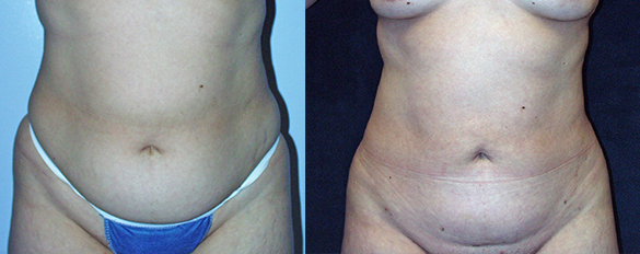 Abdomen, and Flanks liposuction Before & Afte Photos Front