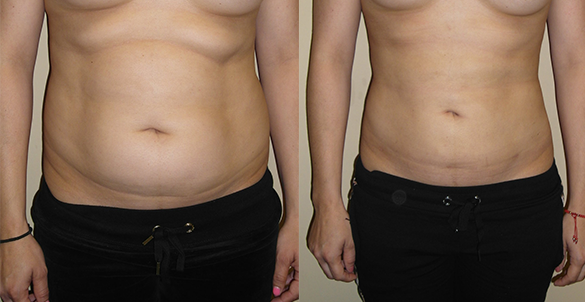 Abdomen, Flanks, and Back liposuction surgery Before & Afte Photos Front