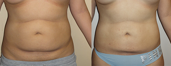 Abdomen, Flanks, and Back liposuction Before & Afte Photos Front