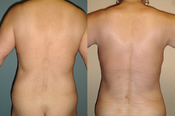 flanks Liposuction before and after photos