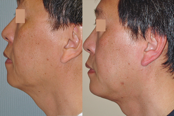 neck liposuction Before & Afte Photos Left