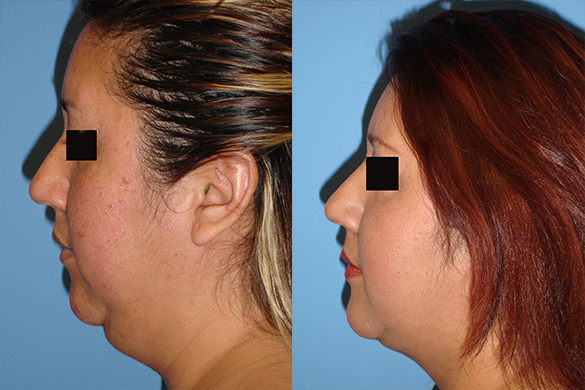neck Liposuction before and after photo left