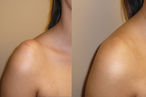 Shoulder Liposuction before and after photo