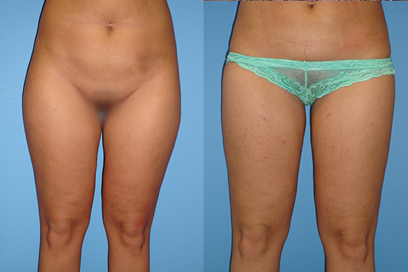 thighs liposuction front