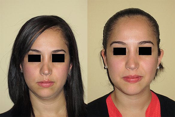 Non Surgical Nose Job Before & After Photos