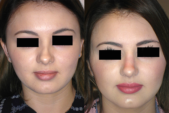 Non Surgical Nose Job Before & After Photos Front
