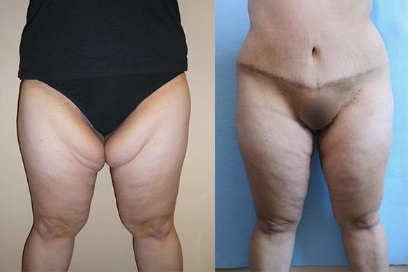 Thigh Lift Before & After Photos