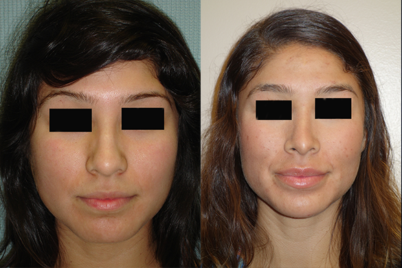 Rhinoplasty Before & After Photos Front