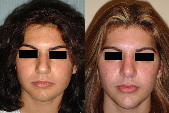 Rhinoplasty & Chin Augmentation Before & After Photos Front