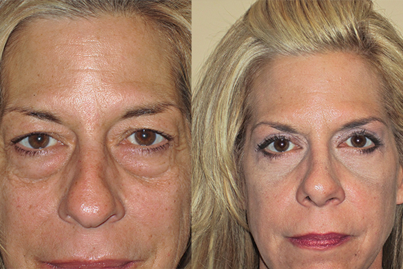 Rhinoplasty & Eyelid Surgery Before & After Photos Front