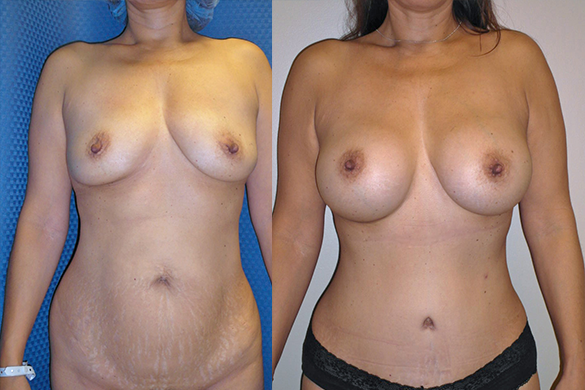 Mommy Makeover & Tummy Tuck Before & After Photos Front