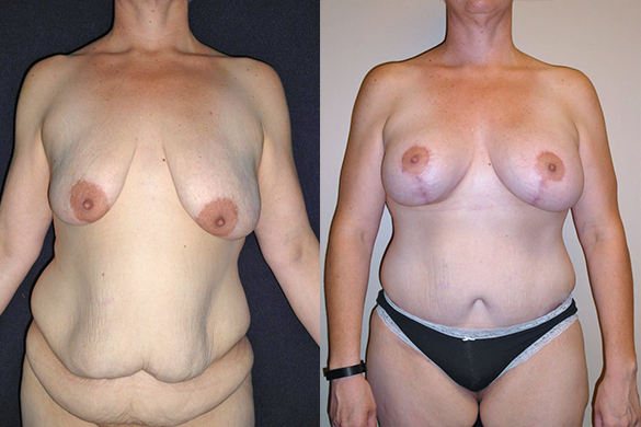 Mommy Makeover & Tummy Tuck Surgery Before & After Photos Front
