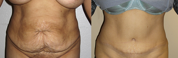Tummy Tuck Before & After Photos Front