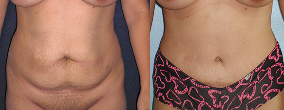 Tummy Tuck Surgery Before & After Photos Front