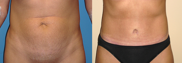 Tummy Tuck Orage County Before & After Photos