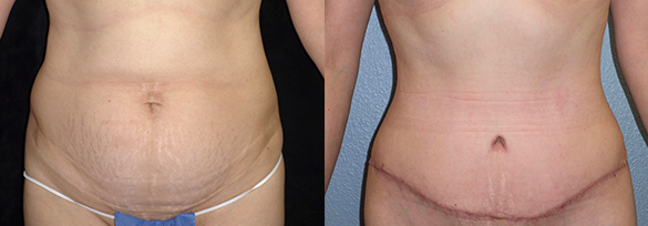 Abdominoplasty Orange County Before & After Photos