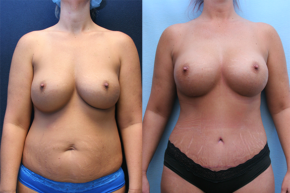 Mommy Makeover Orange County Before & After Photos